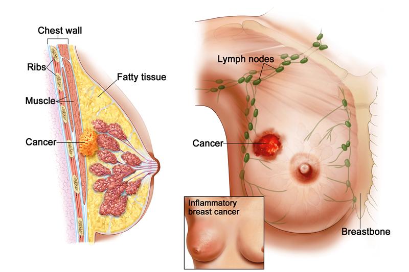 Các giai đoạn của bệnh ung thư vú và dấu hiệu nhận biết bệnh