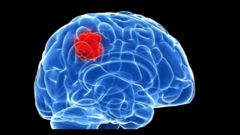 Cách phòng bệnh ung thư não hiệu quả