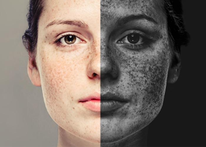 Ảnh hưởng của ô nhiễm đối với da