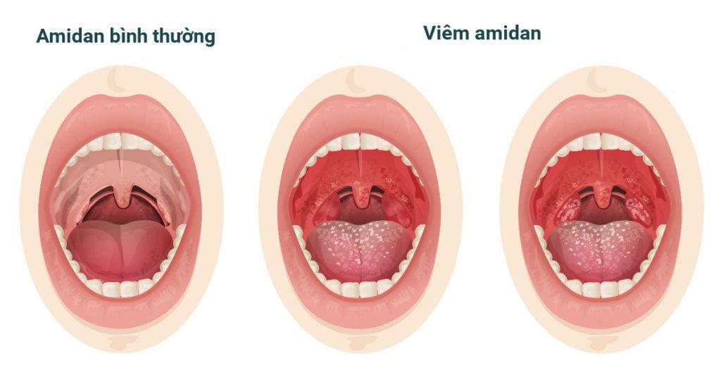 Tìm hiểu về bệnh viêm amidan và các dấu hiệu nhận biết của nó