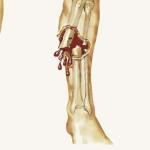 Tổng quan về bệnh ung thư xương và các triệu chứng của bệnh