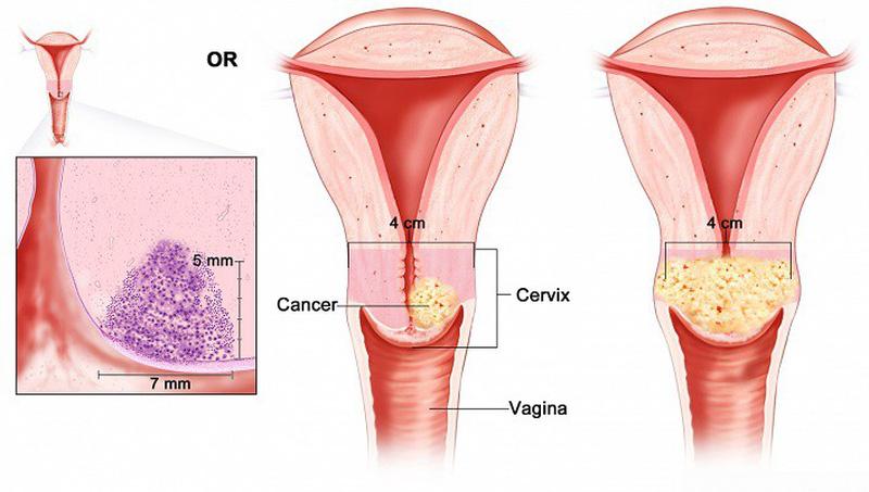 TOP 7 triệu chứng nhận biết bệnh ung thư cổ tử cung
