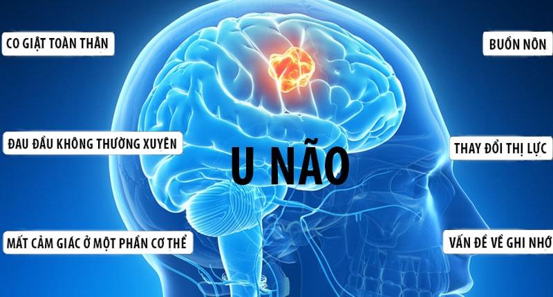 TOP 8 dấu hiệu nhận biết của bệnh U não cần lưu ý
