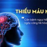 thiếu máu lên não và cách phòng tránh