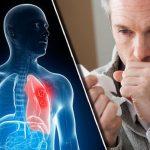 Căn bệnh nguy hiểm ung thư phổi